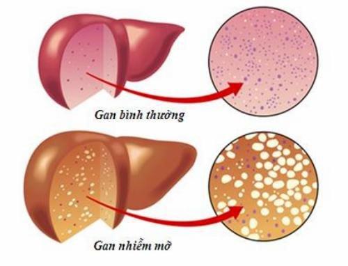 Gan nhiễm mỡ là gì? Chế độ dinh dưỡng cho người bị gan nhiễm mỡ