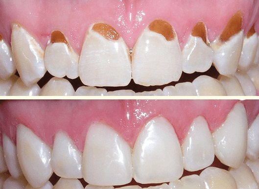 Trám răng là gì? Các vật liệu trám răng tốt nhất hiện nay