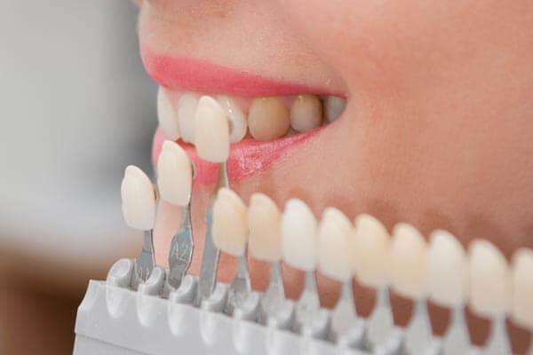 Bọc răng sứ là gì? Chi phí và quy trình các bước bọc răng sứ