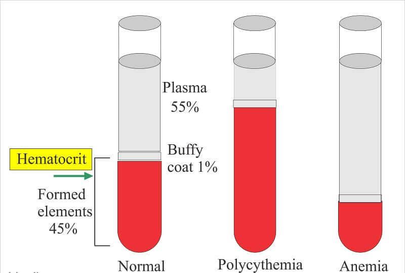 Hematocrit là gì? Đóng vai trò như thế nào trong xét nghiệm máu